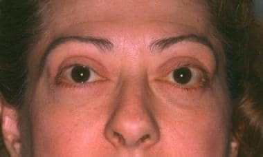 Postoperative image after 4-lid blepharoplasty and