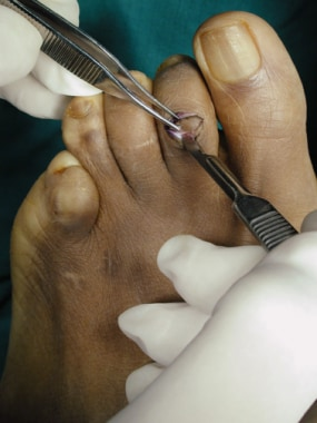 Claw toe. Redundant skin being excised.