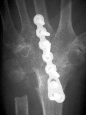 Posteroanterior radiograph of the wrist following