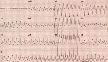 This electrocardiogram is from a 48-year-old man w