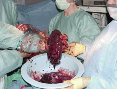A portion of a massive spleen is extracted via han