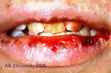 Herpes Simplex: Background, Microbiology, Pathophysiology