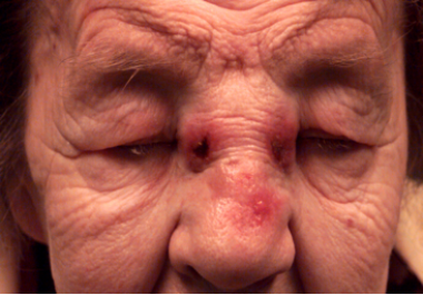 A nasal tumor that has eroded through the nasal bo