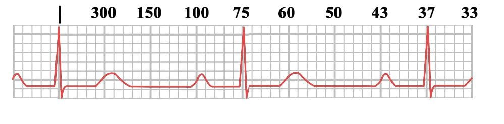 Heart Rates using 300, 150, 100