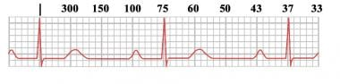 Heart rates associated with each of the large boxe