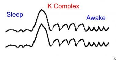 Example of a K complex.