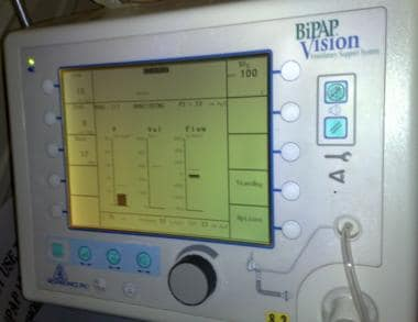 Bilevel positive airway pressure (BiPAP) vision ve