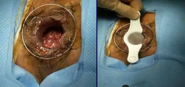 PPH stapled hemorrhoidectomy: retracting and opera