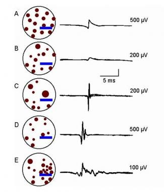 Electromyographic(EMG) evaluation of the motor uni