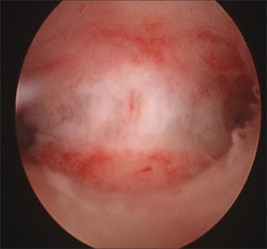 Hysteroscopy revealing uterine septum. (Photo cour