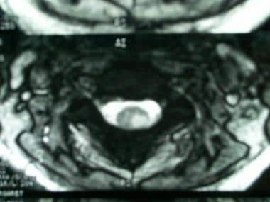 Axial, T2-weighted magnetic resonance image in a w