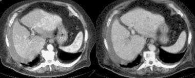 Multifocal hepatocellular carcinoma in an elderly