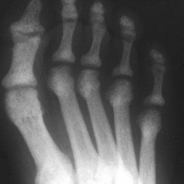 Anteroposterior radiograph of the forefoot in a pa