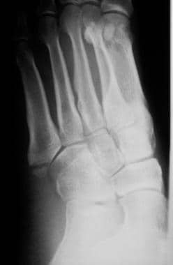 Fractured metatarsals. Avulsion fracture of the tu