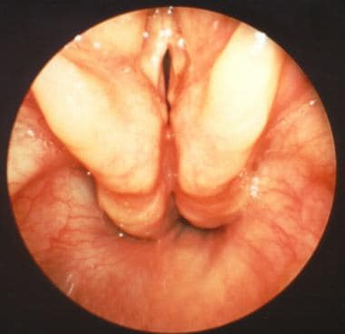 Laryngotracheoesophageal cleft, type I (Benjamin a