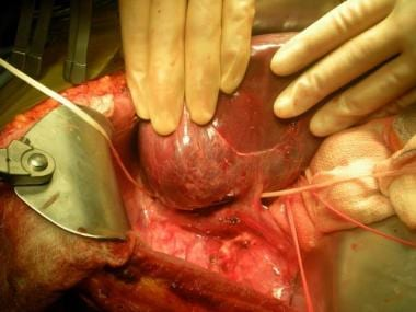 Large middle right accessory vein.