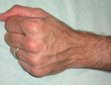 Metacarpal veins.