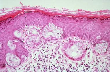 Photomicrograph of mammary Paget disease lesion. N
