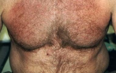 A 54-year-old man with a pruritic eruption on the