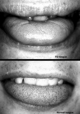Absence of fungiform papillae on the tongue. The h