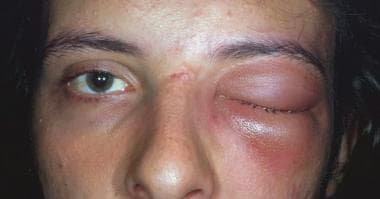 A male patient with orbital cellulitis with propto