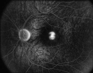 Fluorescein angiography in the late recirculation