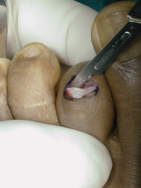 Claw toe. Isolate distal portion of proximal phala