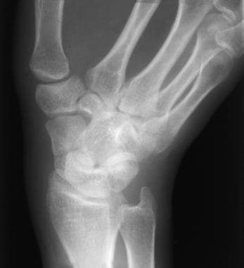 Nondisplaced scaphoid fracture.