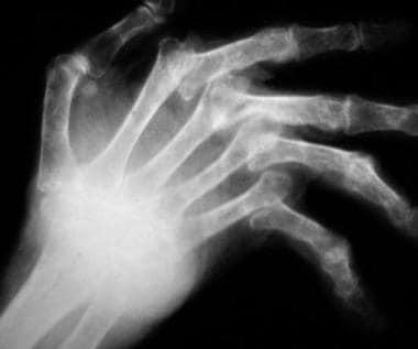 Radiograph of a rheumatoid hand with metacarpophal
