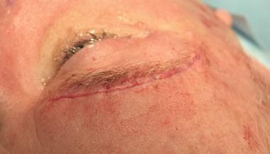 Direct brow lift. Closed wound.