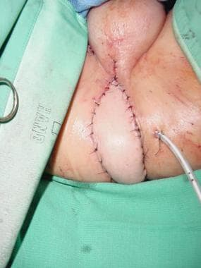 Perineal reconstruction. Flap inset into the perin