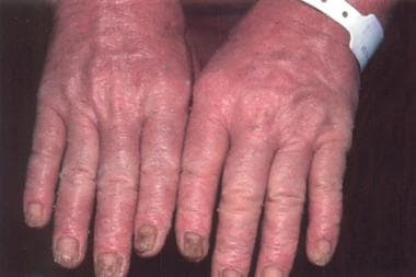 Nail changes of Sézary syndrome.