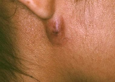 Soft tissue abscess due to cocci.