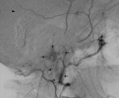 Lateral carotid arteriogram obtained 22 years afte