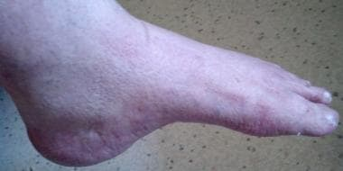 Foot of 29-year-old with advanced Charcot-Marie-To