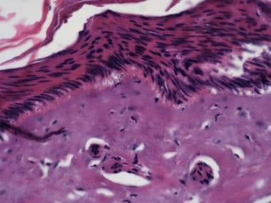 A histologic picture of an electrical burn showing