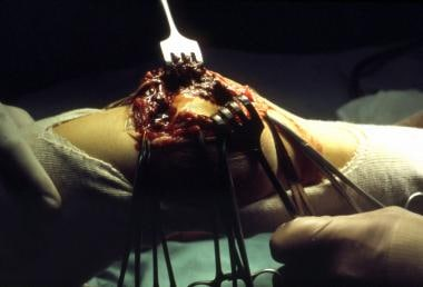 Photograph of a hemophilic knee at surgery, with s