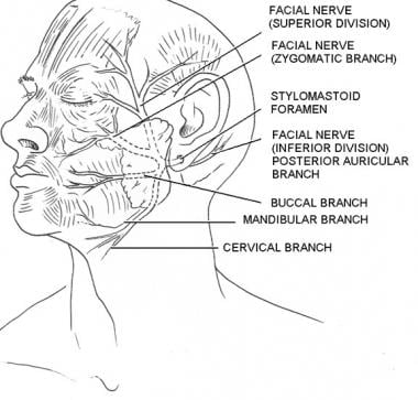 Branches of the facial nerve. Illustrated by Charl