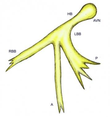 Schematic representation of the trifascicular bund