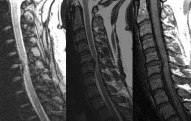 Sagittal T1- and T2-weighted gradient-echo images
