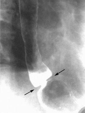 Schatzki ring on an erect, double-contrast barium