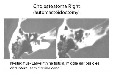 Temporal bone, acquired cholesteatoma. Axial CT sc