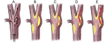 A. Simplified flow patterns at carotid bifurcation