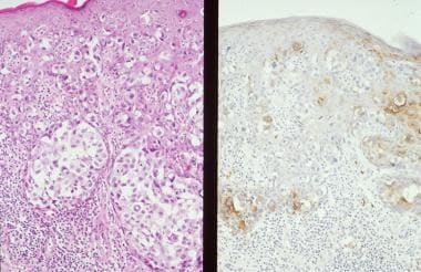 Composite photomicrograph of mammary Paget disease