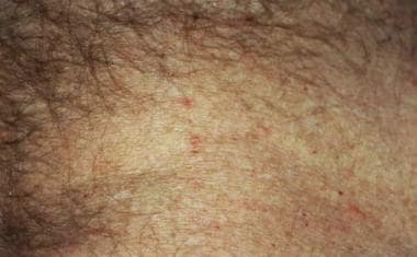 Close-up view of the abdominal area of a patient w