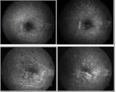 Early disease stage (top): Fluorescein angiography