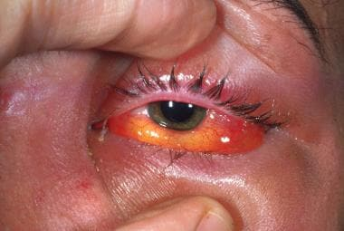 A male patient with orbital cellulitis who demonst