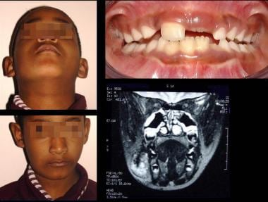 Right facial lymphatic vascular malformation with