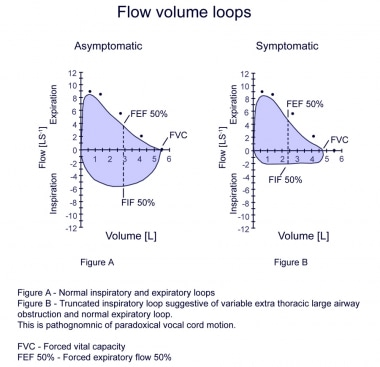 Flow volume loops.