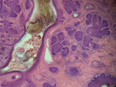 Which histologic findings are characteristic of micronodular